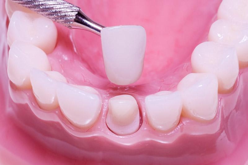 Bọc răng sứ có đau không - đây luôn là điều mà đa phần các bạn trước khi đi bọc răng sứ đều thắc mắc, và Nha Khoa Tân Định xin được trả lời là hoàn toàn không hề đau. Thao tác đau khi bọc răng sứ đó là khi mài cùi răng. Tuy nhiên với công nghệ tiên tiến tại Nha Khoa Tân Định, các nha sĩ sẽ tiến hành gây tê để tránh gây sự lo lắng và ê bướt cho khách hàng trong quá trình thực hiện.