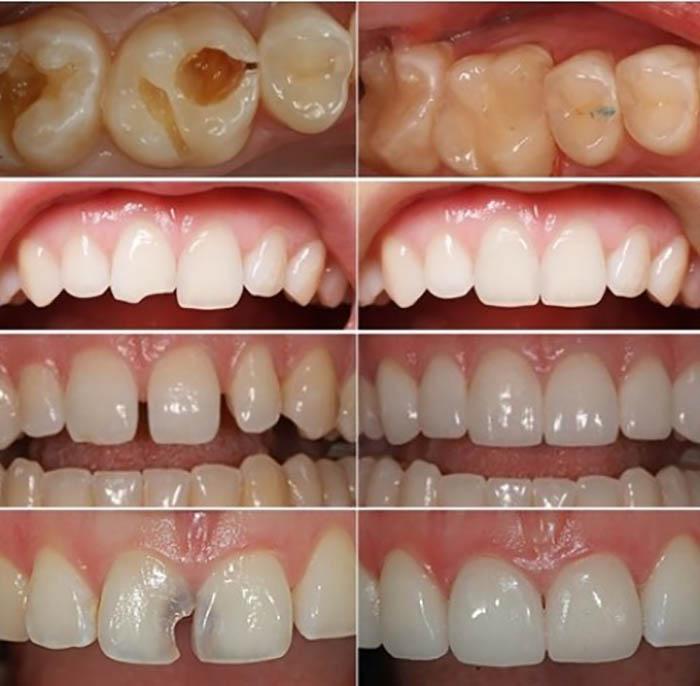 Các loại răng bị tổn thương như: sâu, mẻ, thưa hở… khiến răng không còn đảm bảo được chức năng ăn nhai và thẩm mỹ cho bạn. Với phương pháp trám răng thẩm mỹ, răng bạn sẽ được tái tạo về hình thể và màu sắc, bằng cách đưa vật liệu trám răng thẩm mỹ cao cấp lên răng, tạo hình và khắc phục các khuyết điểm của răng.