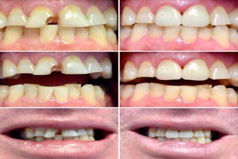 """Trám răng thẩm mỹ hay cò được gọi là """"hàn răng"""" được coi là giải pháp phục hình – nâng cấp cho răng khi răng bị tổn thương như: sâu, mẻ, thưa hở… khiến răng không còn đảm bảo được chức năng ăn nhai và thẩm mỹ cho bạn. Với phương pháp trám răng thẩm mỹ, răng bạn sẽ được tái tạo về hình thể và màu sắc, bằng cách đưa vật liệu trám răng thẩm mỹ cao cấp lên răng, tạo hình và khắc phục các khuyết điểm của răng."""