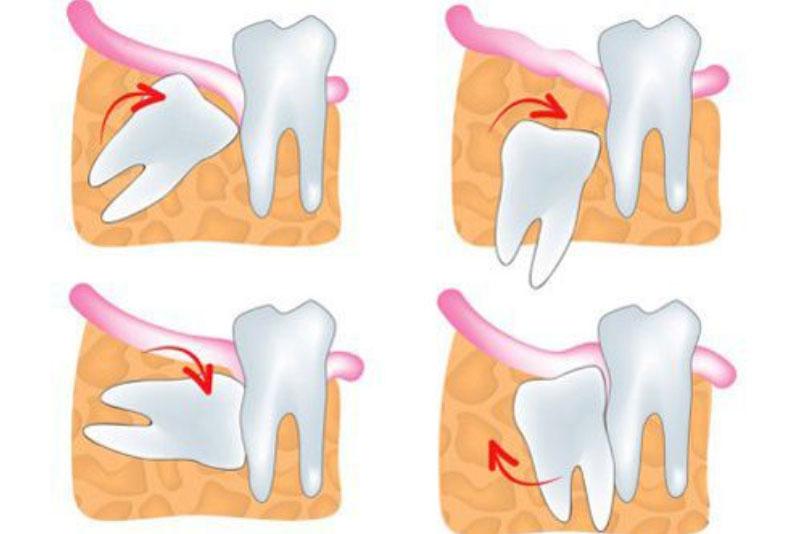 Các loại răng khôn mọc lệch thường gặp: Răng mọc kẹt nghiêng về phía sau. Loại hay gặp nhất là mọc kẹt về phía gần, tức là trục của răng nghiêng về phía trước (về phía răng số 7). Răng khôn mọc kẹt theo chiều thẳng đứng. Răng mọc kẹt nằm ngang. Mọc kẹt trong niêm mạc miệng: răng bị lợi che phủ (lợi trùm). Răng mọc kẹt trong xương hàm: răng vẫn bị bọc kín bởi xương hàm và không mọc ra được.