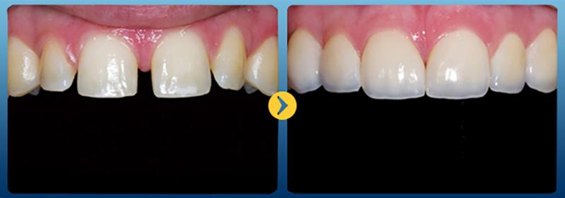 Trám răng thưa là cách bác sĩ dùng vật liệu trám răng thẩm mỹ là Composite để tạo hình lại thân răng nhằm khắc phục tình trạng răng thưa hiệu quả giúp bạn nhanh chóng có hàm răng đều đẹp. Vật liệu trám răng được sử dụng an toàn, không gây kích ứng cho cơ thể lại có màu sắc giống với răng thật nhất. Phương pháp này không cần tác động hay xâm lấn cấu trúc răng và chi phí trám răng cũng tương đối phù hợp nên bạn hoàn toàn có thể trám răng thưa nhé!