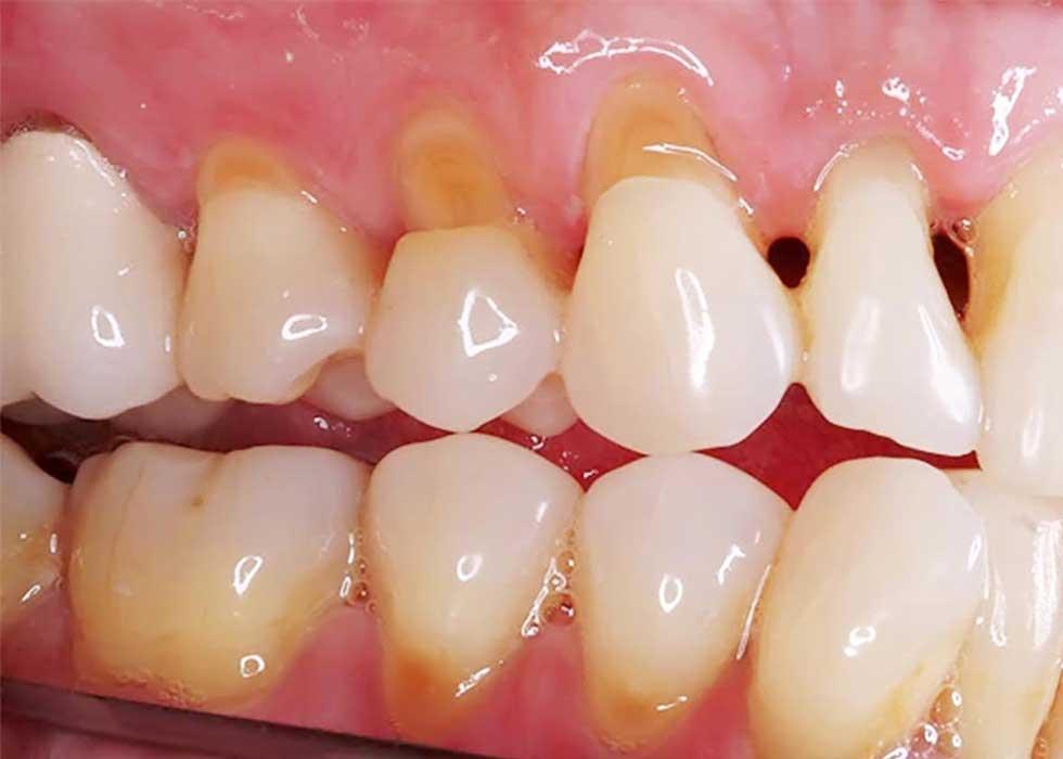 Vôi răng còn là nguyên nhân gây ra chảy máu chân răng, tụt nướu. Thậm chí, trong trường hợp nặng nhất, vôi răng có khả năng gây viêm và tiêu xương ổ răng. Từ đó, dẫn đến tình trạng răng lung lay và rụng sớm.