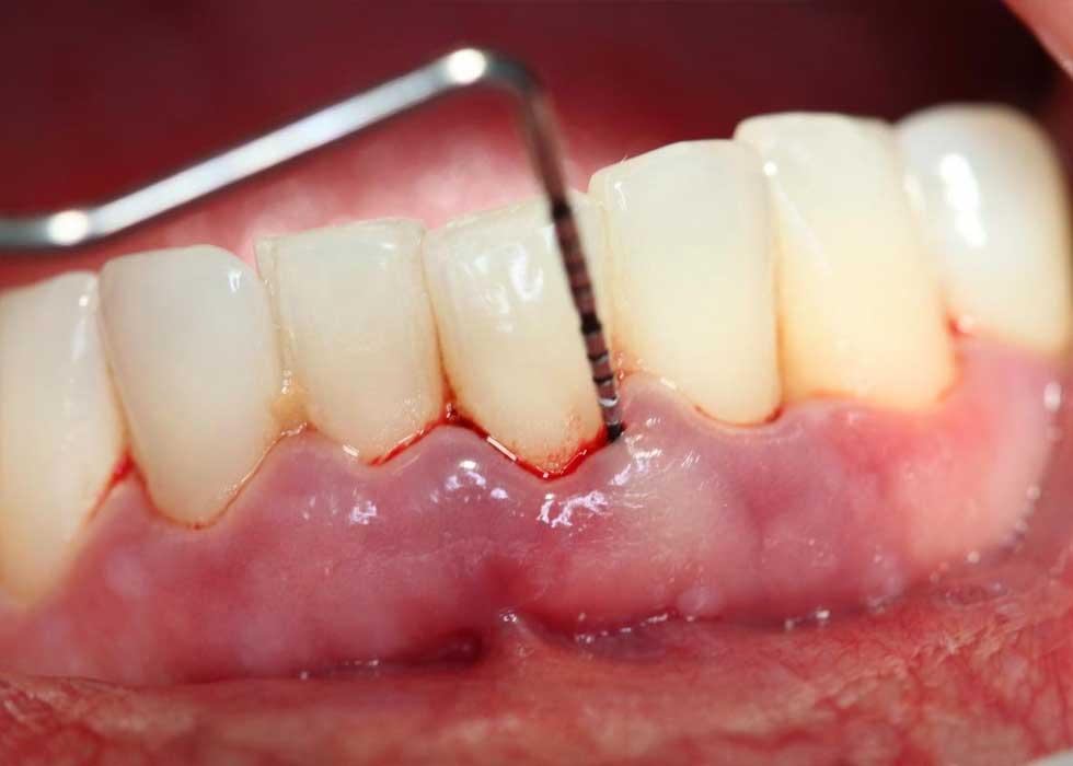 Cao răng là nơi trú ngụ của vi khuẩn - chúng là nguyên nhân chính gây ra tình trạng viêm nha chu. Tại Nha Khoa Tân Định bạn sẽ được lấy vôi răng bàng công bngheej sóng siêu âm rất nhẹ nhàng, không lo đau, không ê buốt.