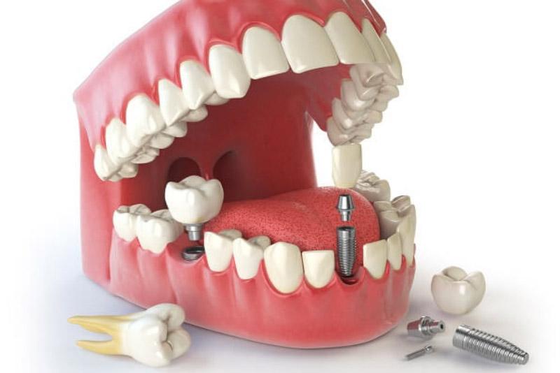 Các thành phần của răng IMPLANT: Thân Implant: đây là trụ nhỏ bằng Titan được thiết kế như một chân răng thực sự dùng để cấy trực tiếp vào xương hàm. Khớp nối (Implant Abutment): hình trụ có 2 đầu giúp thân mão răng và trụ Implant kết chặt lại với nhau. Mão răng (Porcelain crown): được làm bằng sứ, đặt bên trên Implant thông qua khớp nối.