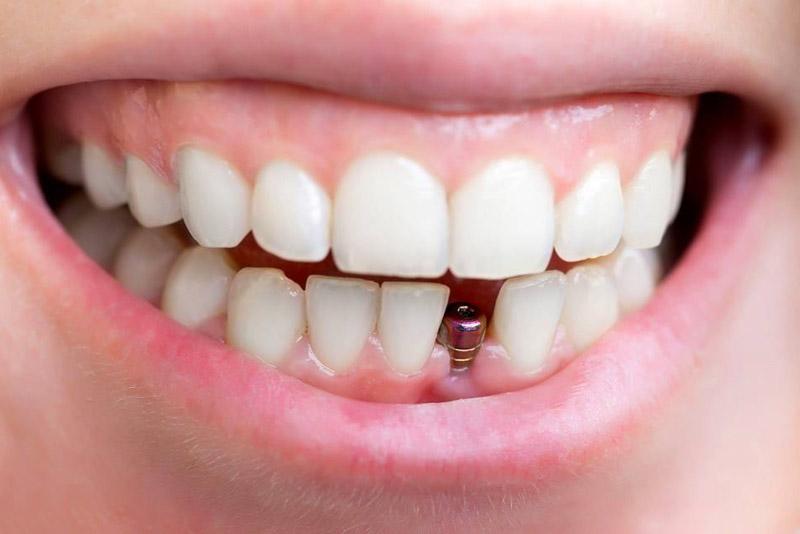 Trồng răng Implant là một phương pháp phục hình răng trong nha khoa. Phương pháp này rất phổ biến ở các nước phát triển và hiện nay ở Việt Nam trồng răng Implant cũng được sử dụng rất phổ biến. Trồng răng Implant hiện đang là giải pháp hoàn hảo nhất để khắc phục tình trạng mất hoặc thiếu răng.