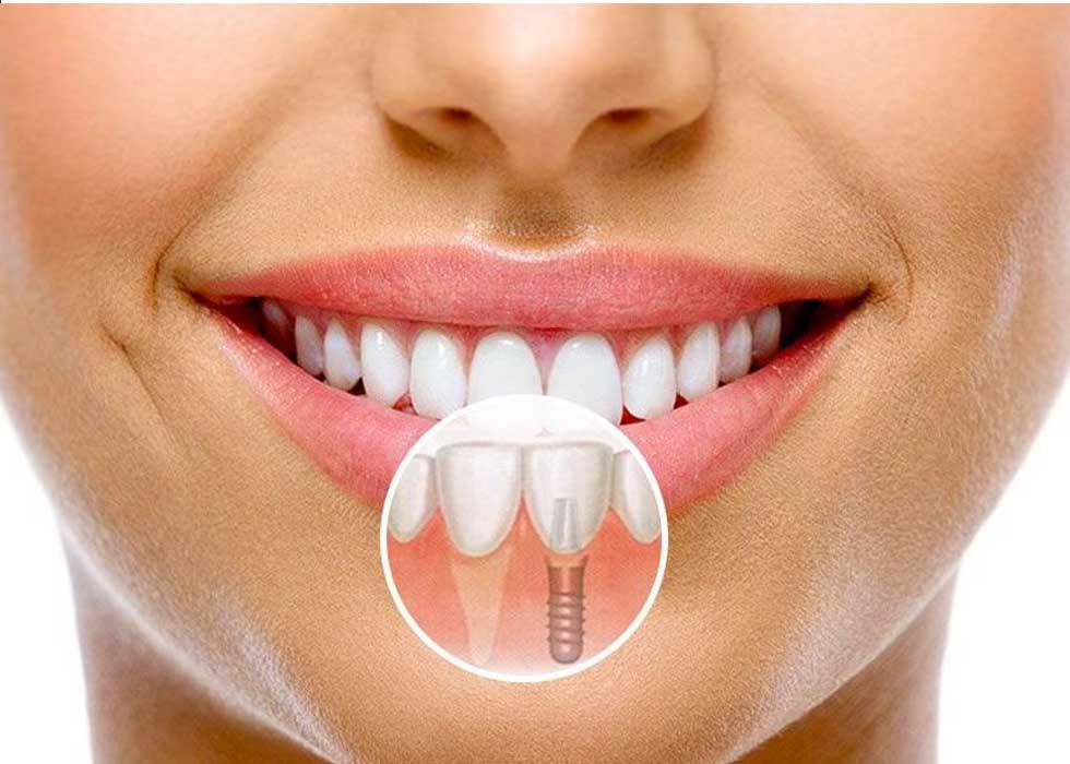 Cấy ghép Implant lại được giới chuyên môn đánh giá cao trong lĩnh vực phục hình răng miệng nha khoa. Đến với Nha Khoa Tân Định bạn sẽ được các bác sĩ có kinh nghiệm tư vấn kỹ càng nhất về quy trình, ưu điểm và chi phí của phương pháp trồng răng Implant một cách chi tiết nhất