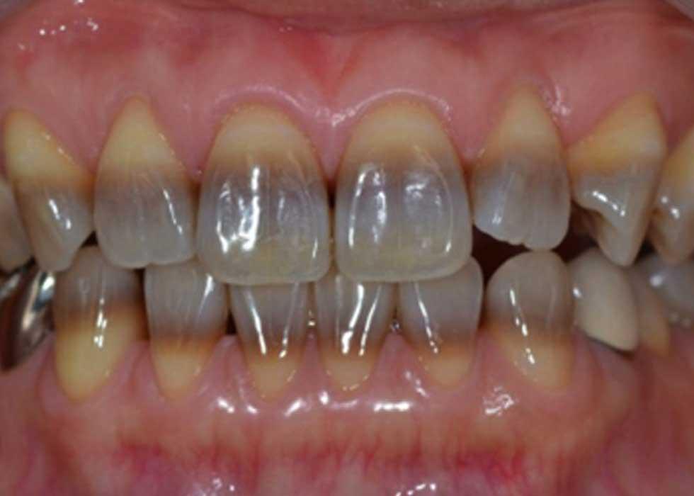 Tia Laser từ đèn Zoom II – USA tại Nha Khoa Tân Định kích hoạt các hoạt chất tẩy trắng có thể xâm nhập vào lớp men và ngà răng, giúp tẩy trắng những vùng răng bị nhiễm màu mà không làm ảnh hưởng hay thay đổi cấu trúc răng