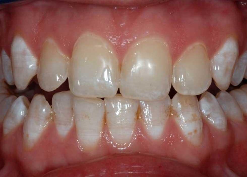 Tẩy trắng răng Lazer Zoom II – USA với đèn chiếu giúp kích hoạt gel Zoom làm trắng, dễ dàng loại bỏ các vết ố màu trên răng, trả lại cho bạn một nụ cười tươi tắn, rạng rỡ.