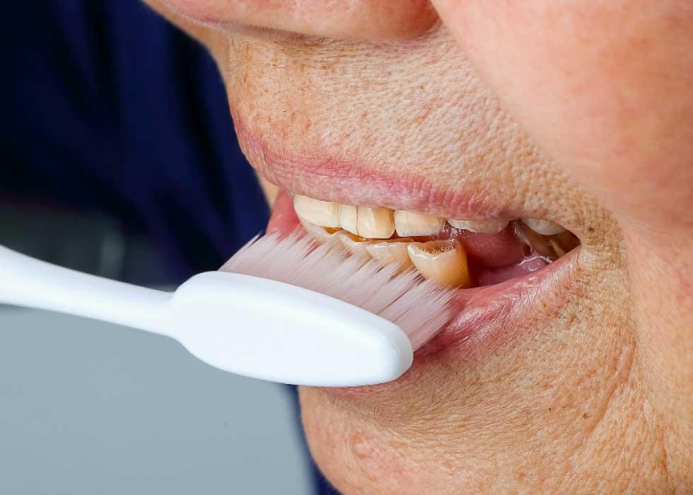 Theo thời gian, lớp ngoài men răng bị mòn dần, dùng càng nhiều loại thực phẩm và đồ uống có chứa sắc tố càng làm răng bị nhiễm màu trầm trọng hơn. Tại Nha Khoa Tân Định, ban sẽ lấy lại được hàm răng trắng sáng với công nghệ Laser Zoom II