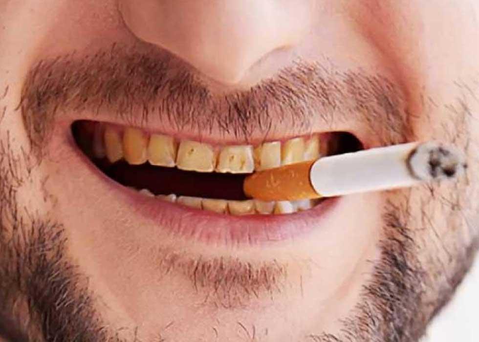 Tẩy trắng răng bàng công nghệ Zoom II tại Nha Khoa Tân Định giúp tẩy trắng răng ố vàng, ngã màu do sự tích tụ của những thực phẩm có màu: Trà, cà phê, thuốc lá, nước ngọt, socola, thuốc lá… răng bị ố màu, ngã vàng do sử dụng những loại thực phẩm có chứa nhiều màu sắc trong thời gian dài.