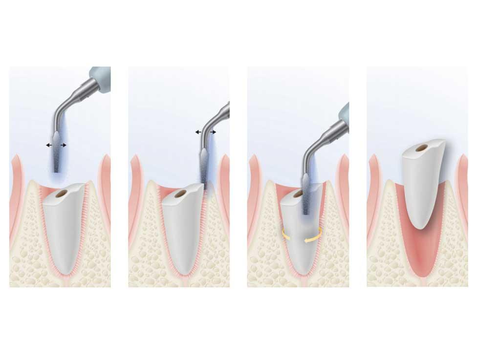 Công nghệ nhổ răng, tiểu phẫu an toàn không đau tại Nha Khoa Tân Định được thực hiện bằng máy phẫu thuật siêu âm Piezotome an toàn và không xâm lấn đến những mô mềm quanh răng