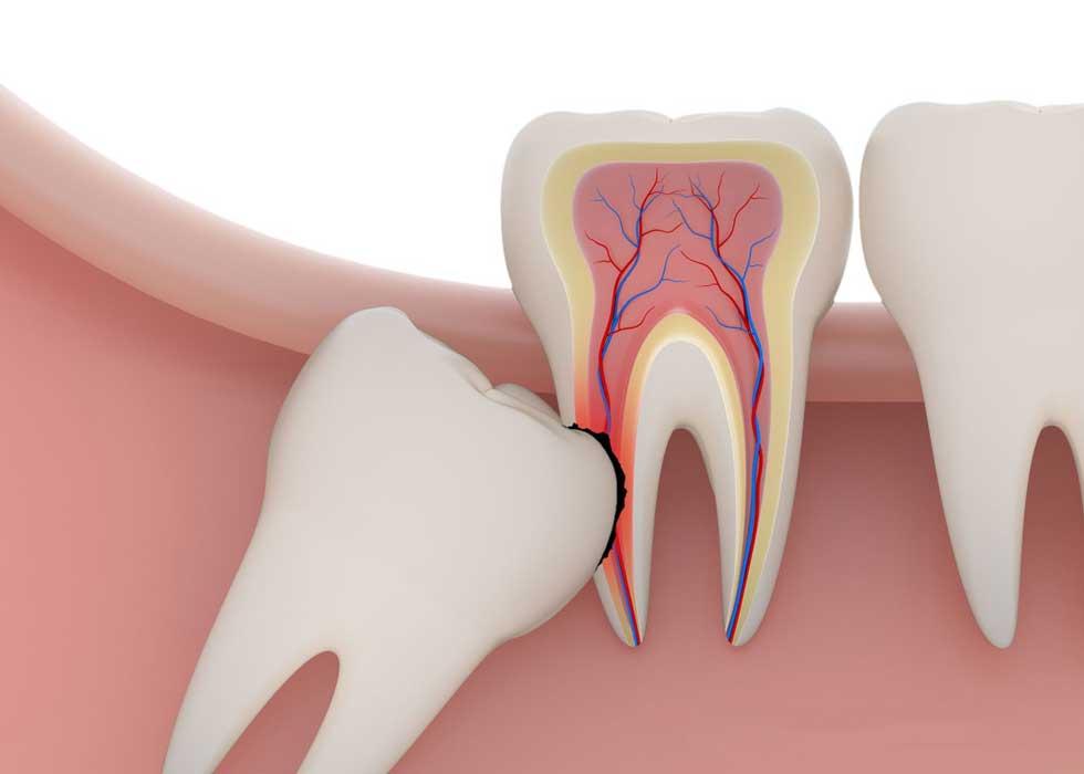 Nha Khoa Tân Định được thực hiện nhổ răng không bằng máy phẫu thuật siêu âm Piezotome an toàn và không xâm lấn đến những mô mềm quanh răng, giúp bạn cảm thấy dễ chịu và không còn ám ảnh khi phải nhổ răng khôn. Thời gian bình phục sẽ nhanh chóng hơn so với những phương pháp truyền thống.