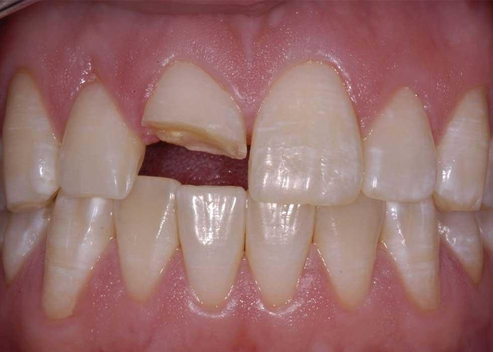 Công nghệ nhổ răng, tiểu phẫu an toàn không đau tại Nha Khoa Tân Định được thực hiện bằng máy phẫu thuật siêu âm Piezotome an toàn và không xâm lấn đến những mô mềm quanh răng, giúp bạn cảm thấy dễ chịu và không còn ám ảnh khi phải nhổ răng.