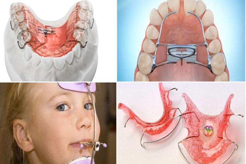 Niếng răng tháo lắp tại Nha Khoa Tân Định được khuyến khích sử dụng nhiều cho các bé ở độ tuổi dưới 13. Đây là một phương pháp không chỉ tiết kiệm mà còn đảm bảo tình thẩm mỹ. Vì vậy, các bé có thể đeo khi đi ngủ và tháo ra lúc không cần thiết.