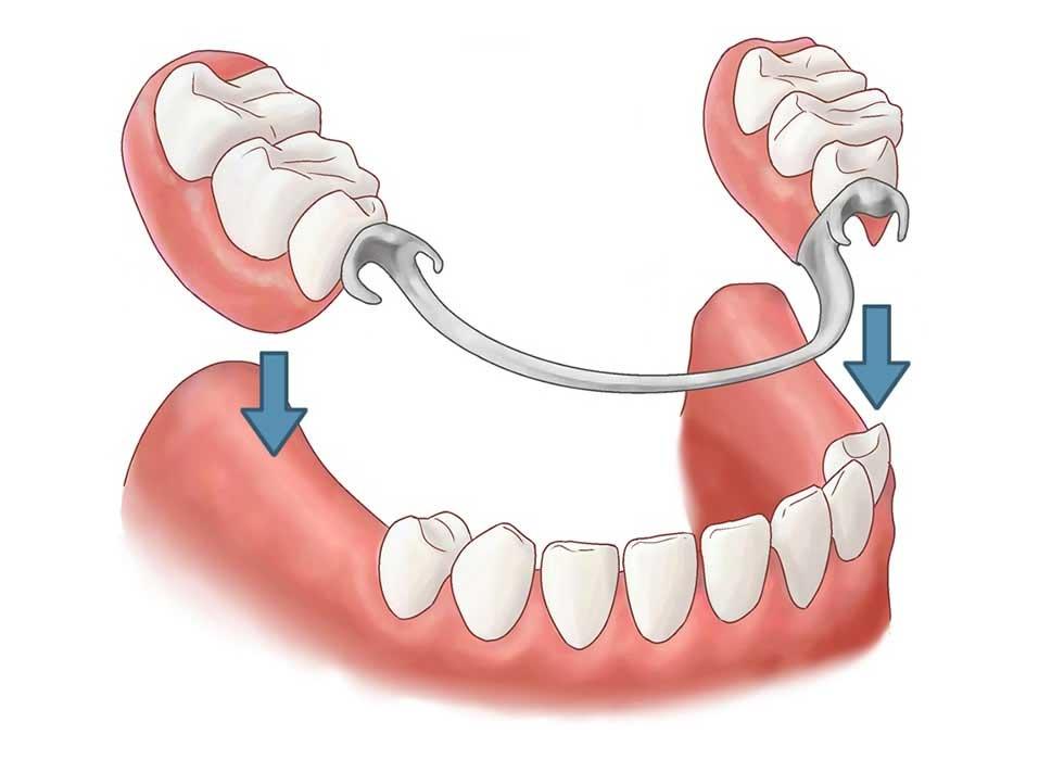 Phục hồi răng toàn hàm tháo lắp bao gồm 2 phần: Phần nền hàm: 1 nền hàm hoặc hàm khung tháo lắp bằng nhựa (lợi giả) hoặc khung hợp kim. Phần răng: bằng nhựa hoặc sứ