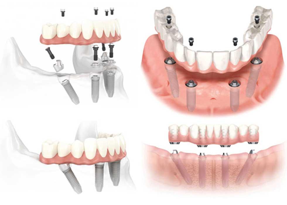 Phục hồi toàn hàm bằng hàm tháo lắp được xem là kỹ thuật phục hình răng giả tháo lắp cho những răng đã mất (mất nhiều răng liền kề, mất nguyên hàm,…) và những mô nướu liên quan. Kỹ thuật này đảm bảo chức năng nhai, độ thẩm mỹ cao và người dùng dễ dàng tự tháo lắp vệ sinh.