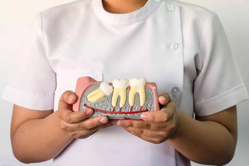 """Thông thường, một người sẽ có 4 chiếc răng khôn ở 4 phần hàm, chúng nằm ở vị trí trong cùng của cả hai hàm trên và dưới. Đa phần, răng khôn bắt đầu """"trỗi dậy"""" trong thời gian """"trưởng thành"""" từ 18-25 tuổi."""