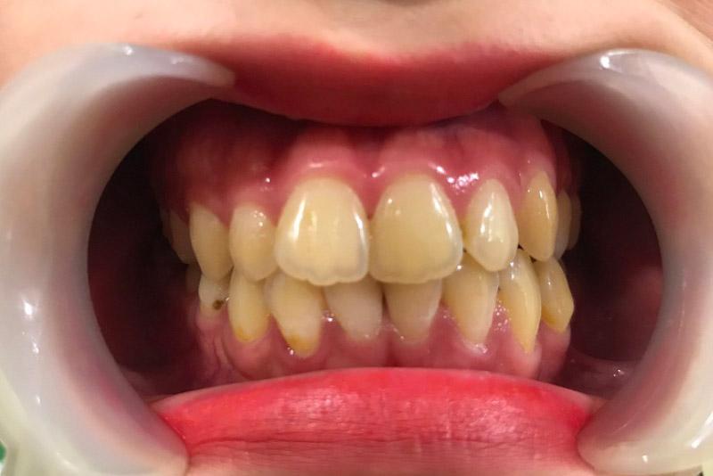 Với những trường hợp răng bị ố vàng do quá trình ăn uống, sinh hoạt bạn nên sử dụng phương pháp tẩy trắng răng. Tẩy trắng răng là một phương pháp làm trắng răng được chỉ định trong trường hợp men răng bị ố màu do quá trình ăn uống hàng ngày. Bản chất của phương pháp này là sử dụng các chất có khả năng oxy hoắc kết hợp với ánh sáng xanh. Sự kết hợp này sẽ tạo ra phản ứng oxy hóa giúp cắt đứt chuỗi phân tử màu trong ngà giúp răng trắng hơn ban đầu.