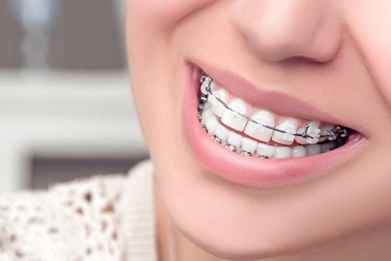 Sở hữu một hàm răng đẹp luôn là mơ ước của tất cả mọi người, tuy nhiên đây không phải là may mắn mà ai cũng có. Do đó, các phương pháp chỉnh nha được sinh ra để giúp bạn có thể khắc phục tình trạng này. Trong bài viết kỳ này, hãy cùng Nha Khoa Tân Định tìm hiểu về niềng răng nhé!