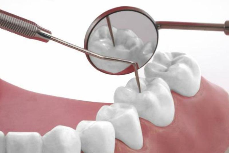 Tùy vào tình trạng hư hại của răng, mức chi phí trám răng sẽ có sự chênh lệch khác nhau. Trung bình giá trám răng tại Nha Khoa Tân Định sẽ khoảng 500k cho một chiếc.