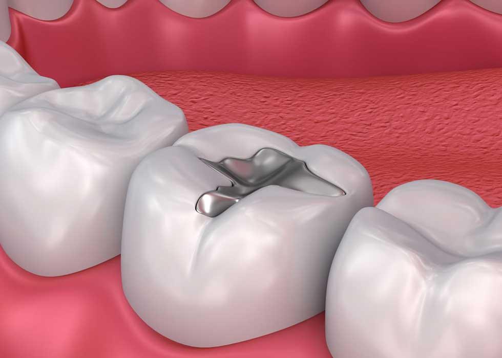 Trám răng thẩm mỹ chỉ thực hiện được ở những trường hợp răng bị sâu nhẹ, mẻ ít, mòn cổ răng,… Trám răng thẩm mỹ là phương pháp nha khoa thông dụng giúp khôi phục lại những chiếc răng đã bị hư hỏng do sâu răng, trả lại chức năng cho răng.