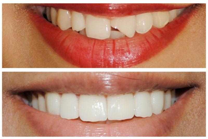 Răng bị vỡ nứt không đảm bảo được chức năng ăn nhai và thẩm mỹ cho bạn. Với phương pháp trám răng thẩm mỹ, răng bạn sẽ được tái tạo về hình thể và màu sắc, bằng cách đưa vật liệu trám răng thẩm mỹ cao cấp lên răng, tạo hình và khắc phục các khuyết điểm của răng.