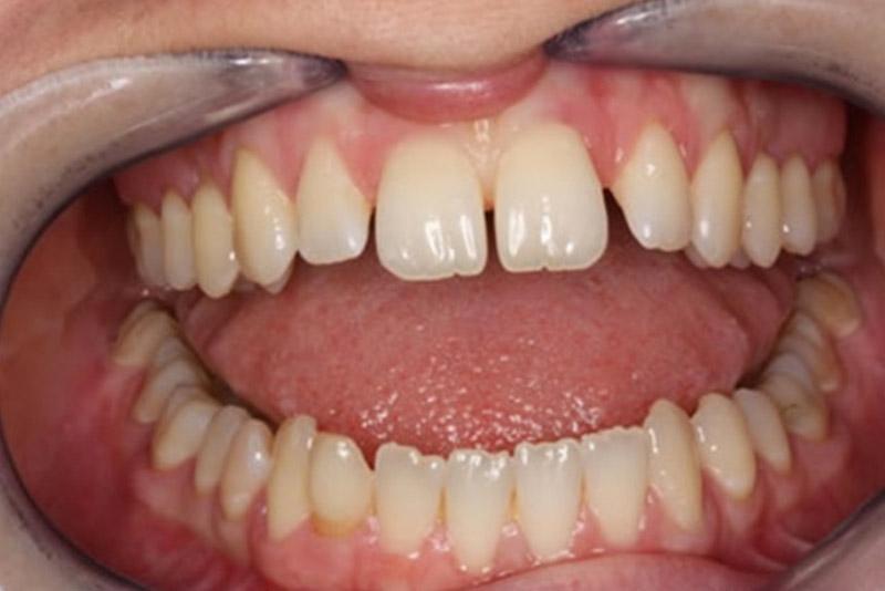 Tại nha khoa Tân Định, đội ngũ các bác sĩ chuyên khoa sẽ trực tiếp thăm khám và xem xét mức độ hư hỏng của răng bạn. Từ đó, quy trình trám răng sẽ được áp dụng dưới sự hỗ trợ của hệ thống máy móc hiện đại, được thực hiện trong thời gian nhanh chóng, cam kết hiệu quả cao. Với tất cả các thiết bị hiện đại, phòng khám đạt chuẩn do Sở Y tế cấp phép cùng đội ngũ y bác sĩ giàu kinh nghiệm, chuyên môn cao giúp bạn không phải lo lắng răng khi răng bị thưa vì đã có phương pháp trám răng thưa tối ưu từ Nha Khoa Tân Định.