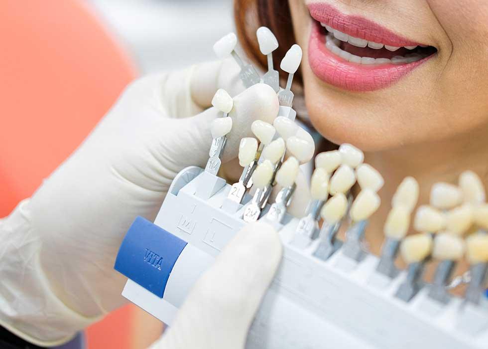 Bác sĩ tại Nha Khoa Tân Định tiến hành tư vẫn cho khách hàng về việc làm trắng răng dựa trên các bảng màu răng