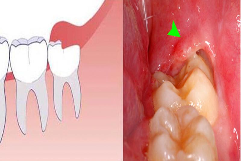 Viêm lợi trùm được biết đến là một dạng bệnh lý liên quan chính đến quá trình phát triển của răng khôn. Phần lợi trên mặt răng khôn sẽ gây sự cản trở khiến răng khôn không thể mọc lên tiếp. Phần răng khôn sẽ tiếp tục mọc và đâm vào phần lợi, gây cảm giác khó chịu cho người mắc phải. Thường trong quá trình mọc răng khôn, bạn sẽ phải đối mặt nhiều lần vào tình trạng này. Với một số trường hợp viêm lợi trùm nặng, phần lợi trùm bị sưng phồng gây đau đớn trong quá trình ăn uống.