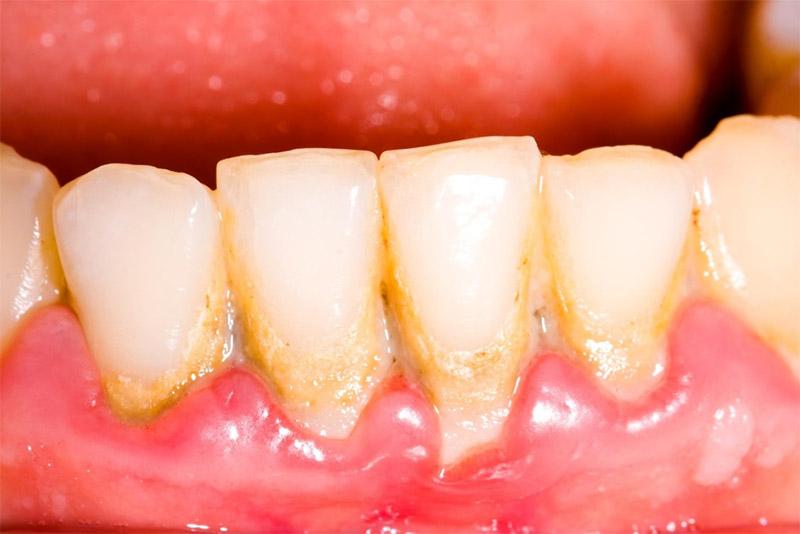 Cao răng có thể tự tróc ra, đây chính là hiểu lầm của không ít người. Tuy nhiên, trên thực tế cao răng là những mảng bám bị vôi hóa. Chúng bám rất chắc vào men răng vào nướu. Vì vậy việc cao răng tự tróc là điều khó có thể xảy ra.