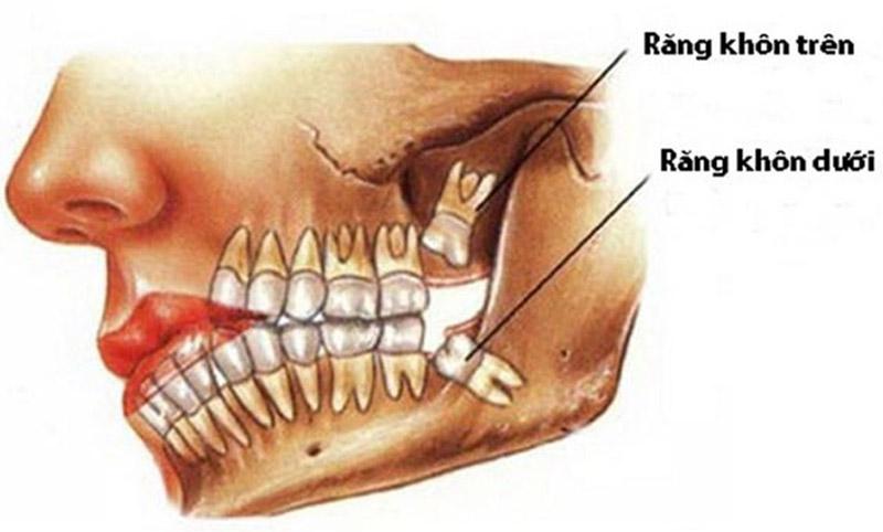 Răng khôn mọc lên thường kèm theo cảm giác đau nhức, khó chịu ở vùng nướu và phần má trong cùng, thậm chí gây ra tình trạng sốt cao khiến sức khoẻ của chúng ta bị ảnh hưởng nghiêm trọng.