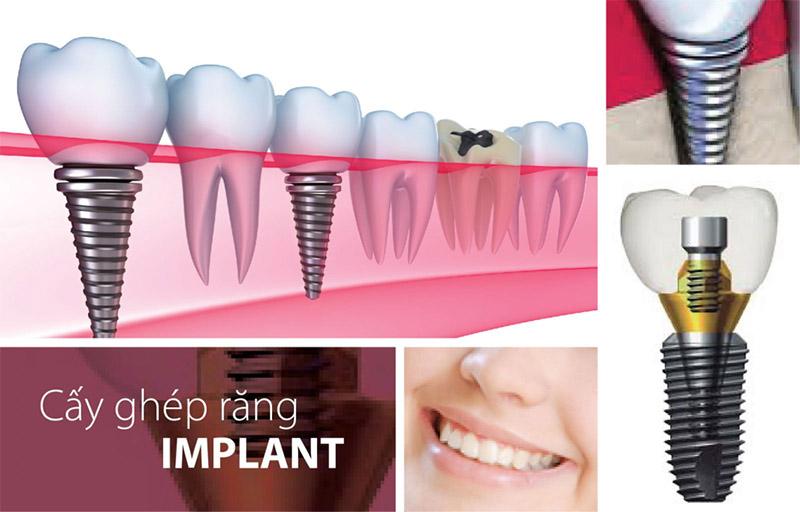 Thông thường thì khi cấy ghép răng Implant thì chi phí sẽ bao gồm chi phí trụ Implant( trong khoảng từ 16,000,000đ – 40,000,000đ một trụ) + với các loại chi phí phát sinh khác. Có thể kể đến như chi phí răng sứ, chi phí khám, chụp CT. Trong trường hợp bệnh nhân bị tiêu xương, thiếu xương thì còn có chi phí cấy ghép thêm xương. Chi phí này rơi vào khoảng từ 2,000,000 – 10,000,000/1 đv.