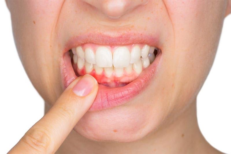 Nha chu là tổ hợp bao gồm: nướu răng, xương ổ răng, dây chằng, lợi và gai lợi. Chúng bao bọc răng và giữ chức năng chống đỡ.