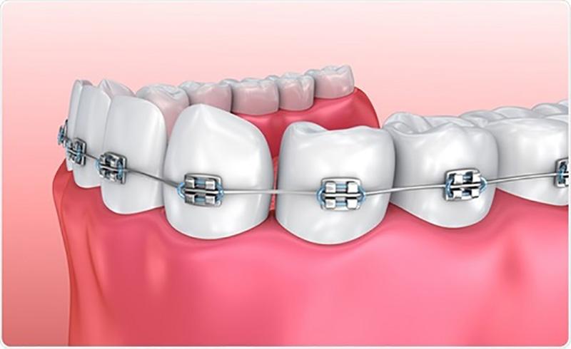 Đây là kỹ thuật chỉnh nha sử dụng các khí cụ gồm các mắc cài hoặc khay trong suốt gắn lên răng. Mục đích là để tạo ra lực kéo giúp di chuyển các răng bị mắc khuyết điểm về lại đúng vị trí. Kết quả ta sẽ có được sự hài hòa giữa 2 hàm và khớp cắn chuẩn với hàm trên.
