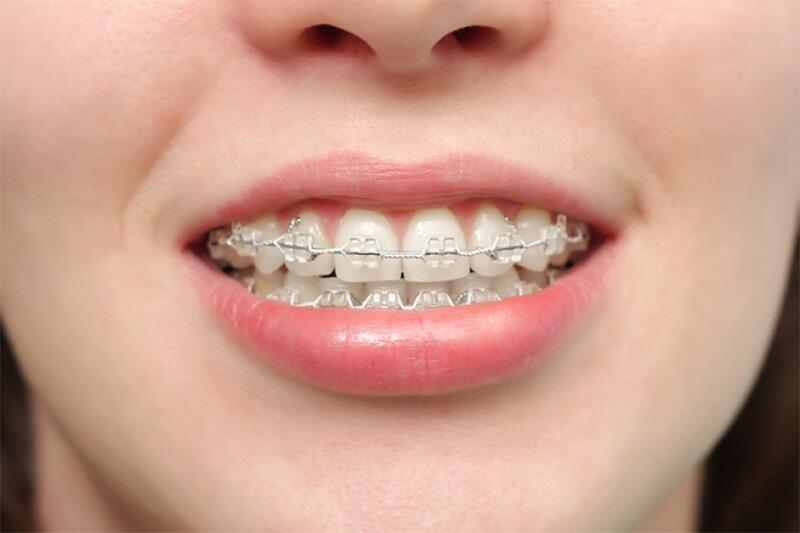 Niềng răng hô 2 hàm là phương pháp chỉnh nha đồng thời giữa hàm trên và hàm dưới. Phương pháp này được áp dụng trong trường hợp hàm hô nặng và lệch khớp nhai