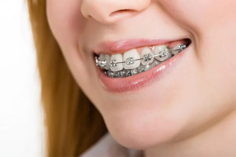 Chi phí chỉnh nha cho 2 hàm sẽ rơi vào khoảng từ 28.000.000 cho tới 42.000.000, tùy thuộc vào độ tuổi và tình trạng răng, mức chi phí này sẽ có sự thay đổi