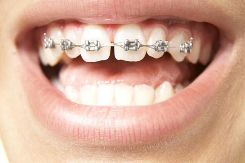 Việc niềng răng kéo để răng khít và sát với nhau sẽ mất tầm 1 cho đến 2 năm điều trị. Tuy nhiên, đối với niềng răng thưa thì việc này còn phụ thuộc vào nhiều yếu tố. Có thể kể đến như: độ tuổi người niềng, mức độ hở của răng cũng như tình trạng răng miệng. Theo nhiều chuyên gia, mức độ tuổi niềng răng thưa dễ dàng và nhanh nhất là độ tuổi niên thiếu (từ 11-16 tuổi