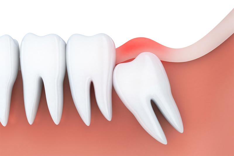 Đa số trường hợp thì răng khôn thường mọc thiếu chỗ. Nó thường mọc và đâm ngang vào những chiếc răng bên cạnh. Hay nặng hơn là mọc lệch đâm vào má. Hoặc mọc ngầm dưới nướu và gây đau nhức vô cùng. Chưa kể nếu chăm sóc răng không tốt thì răng khôn sẽ rất dễ bị viêm nhiễm. Hậu quả là gây sưng tấy, viêm đỏ và đau nhức đến phát sốt.