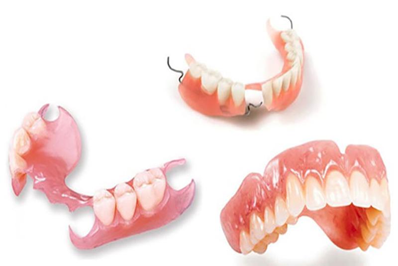 Răng giả tháo lắp toàn hàm là phương pháp làm răng giả thường được áp dụng cho đối tượng lớn tuổi bị mất răng toàn hàm. Cấu tạo của răng giả tháo lắp toàn hàm gồm 1 nền hàm hoặc hàm khung tháo lắp, phía bên trên là các răng giả.
