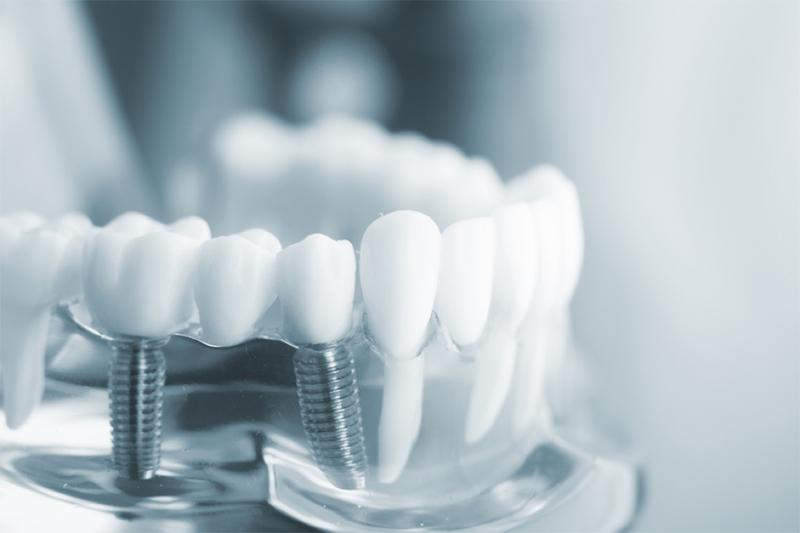 Làm răng giả thẩm mỹ tại Nha khoa - Đa khoa Phương Nam