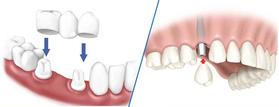 Nên lựa chọn trồng răng sứ hay cấy ghép Implant? Đây là thắc mắc rất lớn của những người gặp phải tình trạng mất hoặc thiếu răng. Trồng răng sứ (lắp cầu răng sứ) và cấy ghép răng sứ Implant đều là những phương pháp giúp phục hồi răng đã mất. Hai phương pháp này đều mang tới cho người sử dụng tính thẩm mỹ cũng như độ bền cao. Tuy nhiên, giữa mỗi phương pháp đều có những ưu và nhược điểm riêng. Thêm vào đó, căn cứ trên tình trạng răng của bệnh nhân cũng như điều kiện kinh tế, các nha sĩ sẽ thăm khám và trao đổi. Căn cứ vào đó sẽ đưa ra giải pháp phù hợp nhất cho từng tình trạng.