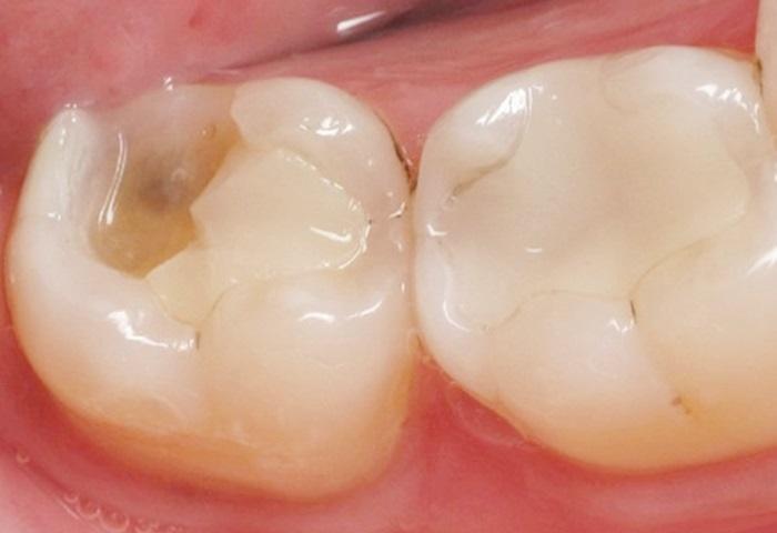 """Việc trám răng hay không, các nha sĩ sẽ dựa trên tình trạng sâu của răng. Với tình trạng răng sâu mới """"chớm"""", các nha sĩ sẽ chỉ định bệnh nhân điều trị răng sâu bằng Fluoride. Đây là phương pháp sử dụng Fluoride dưới dạng gel hoặc bọt bôi lên bề mặt răng giúp khôi phục men răng - phần men răng đã bị vi khuẩn gây sâu răng bào mòn đi phần nào. Nếu vượt qua giai đoạn này, các nha sĩ sẽ chỉ định bệnh nhân loại bỏ phần men và ngà bị tổn thương đồng thời khôi phục lớp bảo vệ răng bằng vật liệu trám răng."""