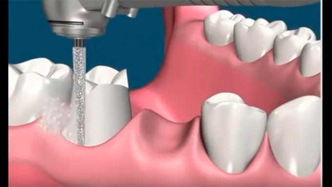 Với thủ thuật bọc răng sứ, chắc chắn bạn sẽ phải tiến hành mài nhỏ răng. Sau đó, dựa trên số liệu từ răng đã mài, các nha sĩ sẽ lấy khuôn răng, số đo, lên cung mặt sao cho phù hợp nhất với sự chuyển động của hàm. Từ đó, những số liệu này sẽ được gửi về nhà sản xuất để thực hiện làm răng sứ.