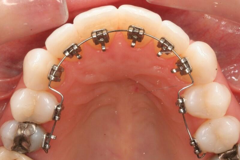 """Niềng răng mắc cài mặt trong cần sử dụng nhiều kỹ thuật, công nghệ và công sức của người nha sĩ. Do đó, chi phí sẽ """"nhỉnh"""" hơn phương pháp chỉnh nha truyền thống đôi chút. Tùy vào tình trạng răng miệng và phác đồ điều trị khác nhau, giá thành sẽ dao động trong khoảng 35-65 triệu."""