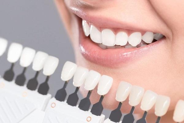 Kết quả này còn tùy thuộc vào từng người, không phải ai cũng giống nhau. Có thể tùy theo nguyên ngân và tình trạng nhiễm màu ban đầu. Ví dụ nếu bạn bị nhiễm màu trên bề mặt và màu răng ố vàng rõ thì sau khi tẩy có thể bật tông đáng kể. Còn nếu răng bạn tương đối trắng thì chỉ có thể trắng hơn một chút.