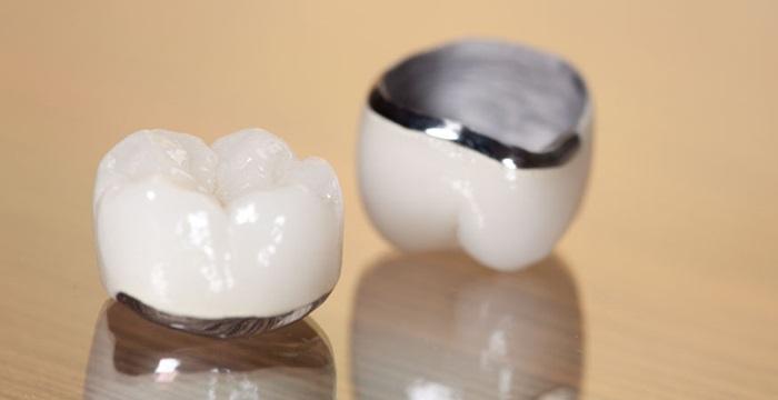 Niken-Crom-Titan được dùng làm phần sườn của răng sứ Titan. Những trường hợp dị ứng kim loại, răng có buồng tủy lớn được khuyên nên chọn loại răng này.Độ lành tính khá cao, hoàn toàn không gây dị ứng cho nướu răng là ưu điểm của loại răng này. Ngoài ra, răng sứ titan còn ít bị tác động bởi nhiệt từ các loại thức ăn nóng, lạnh, khả năng chịu lực tốt, độ ăn nhai bình thường gần như răng thật.
