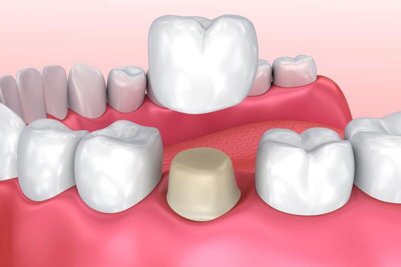 Bọc mão răng sứ là một trong các giải pháp thẩm mỹ được nhiều người quan tâm. Hàm răng trắng, đẹp sẽ mang đến sự tự tin cho bạn. Tuy nhiên, để đưa ra quyết định giữa các loại mão răng sứ, bạn cần trang bị những thông tin cơ bản. Hãy cùng chúng tôi ghi nhận và trả lời những thắc mắc từ các khách hàng nhé!