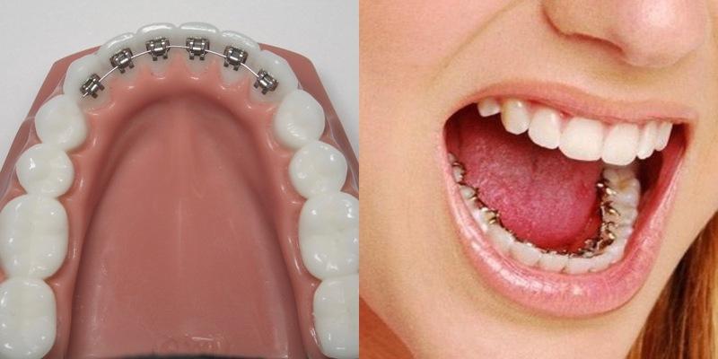 Tính thẩm mỹ trong suốt quá trình chỉnh nha bằng niềng răng mặt trong sẽ được đảm bảo. Bệnh nhân sẽ không còn e ngại hay tự ti khi phải đối diện trong quá trình giao tiếp, làm việc. Dù được cài ở mặt trong nhưng tính hiệu quả vẫn không đổi. Các nha sĩ với tay nghề cao và bộ dụng cụ tiên tiến sẽ đem đến cho bạn một hàm răng đều đẹp.