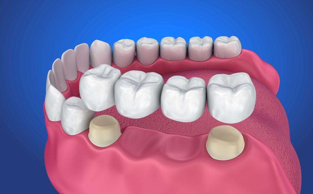 Khi thực hiện lắp cầu răng sứ các nha sĩ sẽ thực hiện mài hai vị trí răng nằm kề vị trí răng đã mất. Việc này nhằm mục đích tạo cùi răng để làm trụ gắn cầu răng. Ưu điểm lớn nhất của phương pháp này là mang lại khả năng nhai tốt và tính thẩm mỹ cao cho người sử dụng với mức giá hợp lý. Nếu được chăm sóc kỹ, tuổi thọ của răng có thể lên tới 10-15 năm. Thêm vào đó, với phương pháp này việc phục hình răng sẽ không gây đau đớn và thời gian thực hiện nhanh.