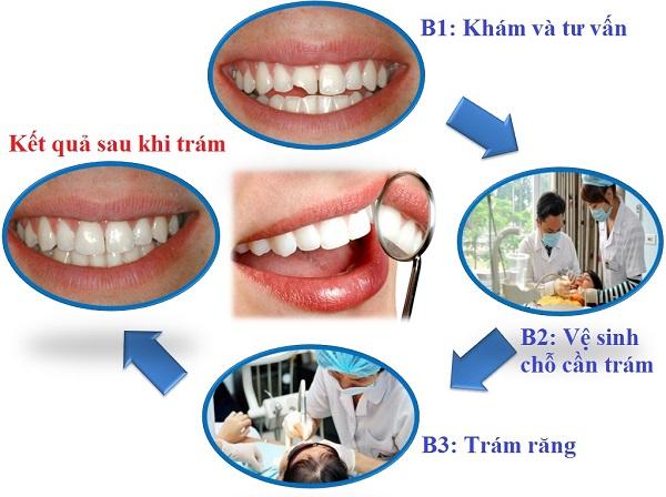 Kiểm tra và tư vấn: đây là giai đoạn đầu tiên. Các nha sĩ sẽ tiến hành kiểm tra tổng quát về tình trạng răng miệng của bệnh nhân. Từ đó, bác sĩ sẽ tư vấn về quy trình thực hiện cũng như những vật liệu sử dụng cho chỗ trám. Gây tê và vệ sinh: Để đảm bảo sự thoải mái cho bệnh nhân trong quá trình thực hiện trám răng, các nha sĩ sẽ tiến hành gây tê cục bộ vị trí răng cần trám. Phần răng bị sâu sẽ được loại bỏ và làm sạch bằng những dụng cụ chuyên biệt. Tiến hành trám: Nha sĩ sẽ đưa vật liệu trám vào trong khoang răng sâu đã được tiến hành làm sạch. Sau đó, các nha sĩ sẽ sử dụng đèn Laser để là vật liệu trám trông cứng lại. Đồng thời bám chắc vào phần thân răng nhờ phản ứng quang trùng hợp. Chỉnh sửa: Đây là bước cuối cùng của quy trình trám răng. Ở giai đoạn này, nha sĩ sẽ tiến hành kiểm tra độ tương thích của khớp cắn bằng cách loại bỏ vật liệu dư thừa. Cuối cùng các nha sĩ sẽ tiến hành mài nhẵn và đánh bóng để đảm bảo bề mặt trám sẽ được mô phỏng như răng thật.